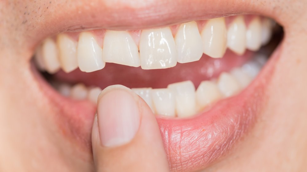 More people are having cracked teeth right now: Here's why
